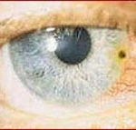 Embedded Foreign Bodies in Eye Close Up