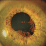 Retinal Trauma and Damage Close Up